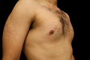 Gynecomastia Gallery - Patient 39248338 - Image 3