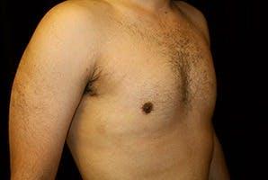 Gynecomastia Gallery - Patient 39248338 - Image 4