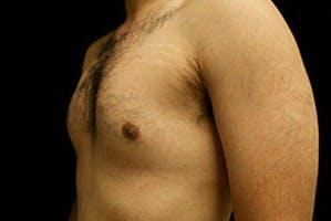 Gynecomastia Gallery - Patient 39248338 - Image 5
