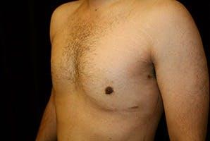 Gynecomastia Gallery - Patient 39248338 - Image 6