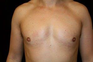 Gynecomastia Gallery - Patient 39248339 - Image 2