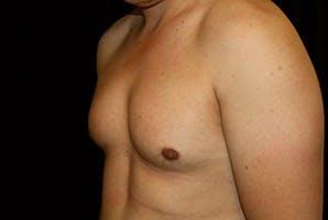 Gynecomastia Gallery - Patient 39248339 - Image 5