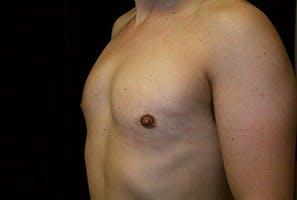 Gynecomastia Gallery - Patient 39248339 - Image 6