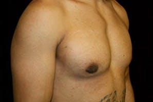 Gynecomastia Gallery - Patient 39248341 - Image 4
