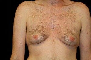 Gynecomastia Gallery - Patient 39248345 - Image 1