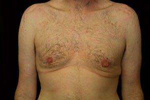 Gynecomastia Gallery - Patient 39248345 - Image 2