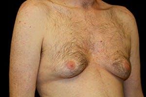 Gynecomastia Gallery - Patient 39248345 - Image 3