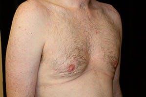 Gynecomastia Gallery - Patient 39248345 - Image 4