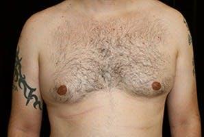 Gynecomastia Gallery - Patient 39248349 - Image 1