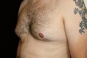 Gynecomastia Gallery - Patient 39248349 - Image 5