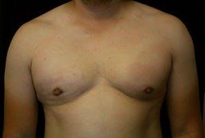 Gynecomastia Gallery - Patient 39248350 - Image 2