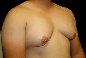 Gynecomastia Gallery - Patient 39248350 - Image 3