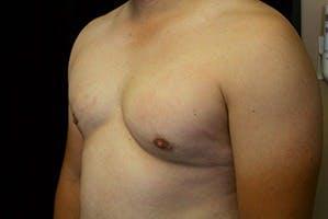 Gynecomastia Gallery - Patient 39248350 - Image 6