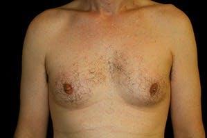Gynecomastia Gallery - Patient 39248353 - Image 1