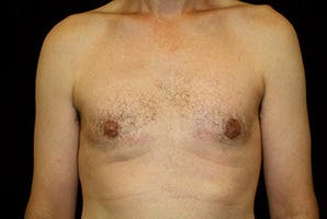 Gynecomastia Gallery - Patient 39248353 - Image 2