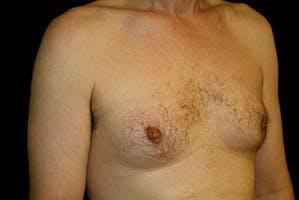 Gynecomastia Gallery - Patient 39248353 - Image 3