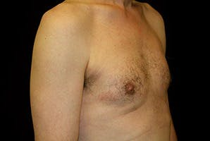 Gynecomastia Gallery - Patient 39248353 - Image 4