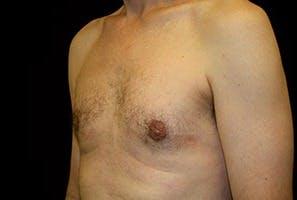 Gynecomastia Gallery - Patient 39248353 - Image 6