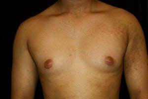 Gynecomastia Gallery - Patient 39248356 - Image 1