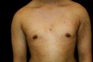 Gynecomastia Gallery - Patient 39248356 - Image 2