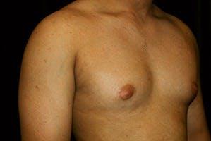 Gynecomastia Gallery - Patient 39248356 - Image 3