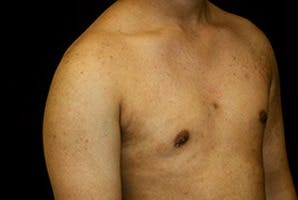 Gynecomastia Gallery - Patient 39248356 - Image 4