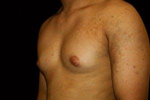 Gynecomastia Gallery - Patient 39248356 - Image 5
