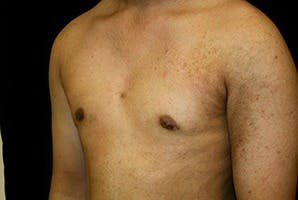 Gynecomastia Gallery - Patient 39248356 - Image 6