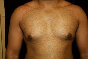 Gynecomastia Gallery - Patient 39248360 - Image 1