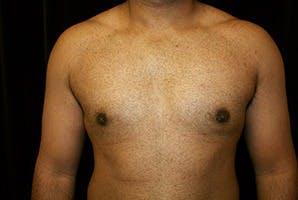 Gynecomastia Gallery - Patient 39248360 - Image 2