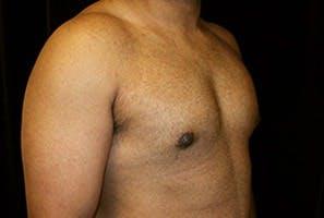 Gynecomastia Gallery - Patient 39248360 - Image 4