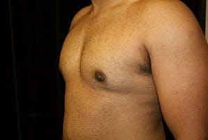 Gynecomastia Gallery - Patient 39248360 - Image 6