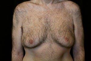 Gynecomastia Gallery - Patient 39248367 - Image 1