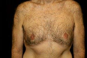 Gynecomastia Gallery - Patient 39248367 - Image 2