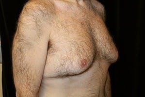 Gynecomastia Gallery - Patient 39248367 - Image 3
