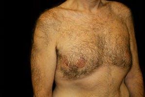 Gynecomastia Gallery - Patient 39248367 - Image 4
