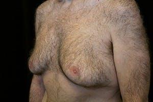 Gynecomastia Gallery - Patient 39248367 - Image 5