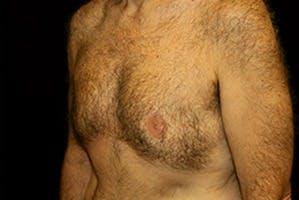 Gynecomastia Gallery - Patient 39248367 - Image 6