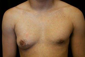 Gynecomastia Gallery - Patient 39248371 - Image 1