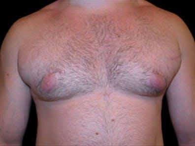Gynecomastia Gallery - Patient 39248375 - Image 1