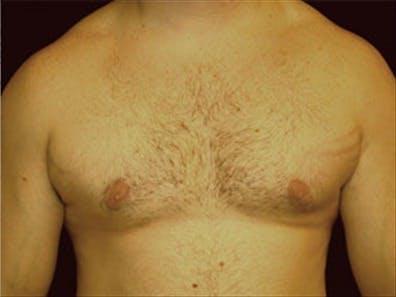 Gynecomastia Gallery - Patient 39248375 - Image 2