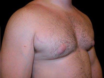 Gynecomastia Gallery - Patient 39248375 - Image 3