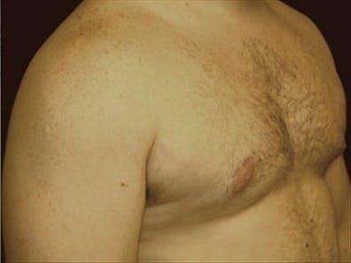 Gynecomastia Gallery - Patient 39248375 - Image 4