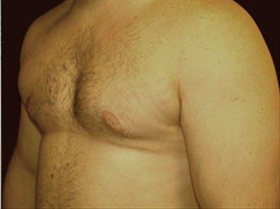 Gynecomastia Gallery - Patient 39248375 - Image 6