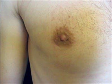Gynecomastia Gallery - Patient 39248378 - Image 2