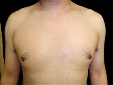 Gynecomastia Gallery - Patient 39248382 - Image 2