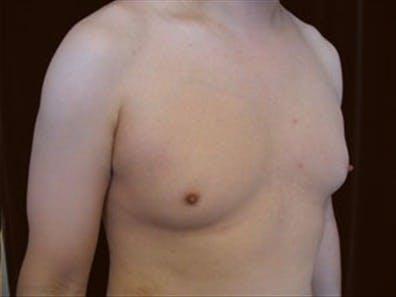 Gynecomastia Gallery - Patient 39248382 - Image 3
