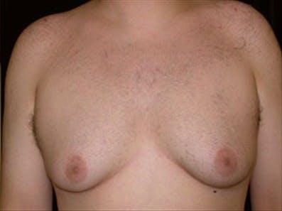 Gynecomastia Gallery - Patient 39248389 - Image 1