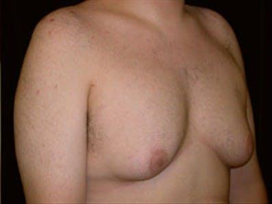Gynecomastia Gallery - Patient 39248389 - Image 3