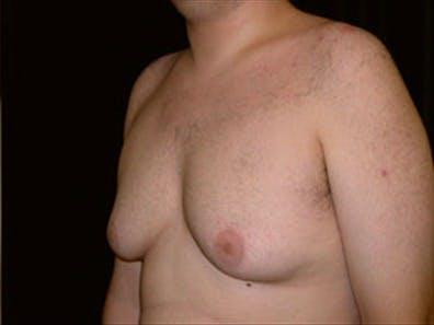 Gynecomastia Gallery - Patient 39248389 - Image 5